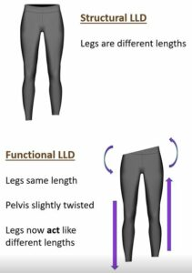 structural-vs-functional-leg-length-discrepancy