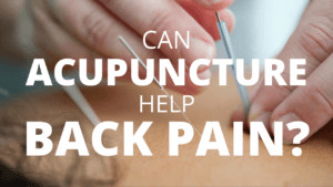 can-acupuncture-help-back-pain